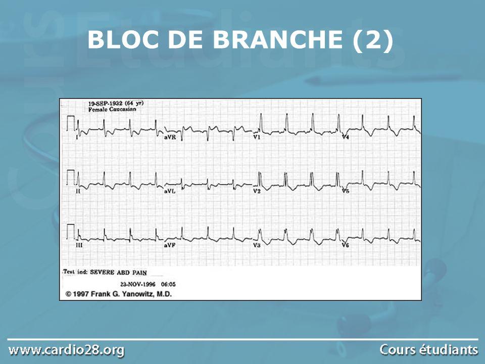 BLOC DE BRANCHE (2)