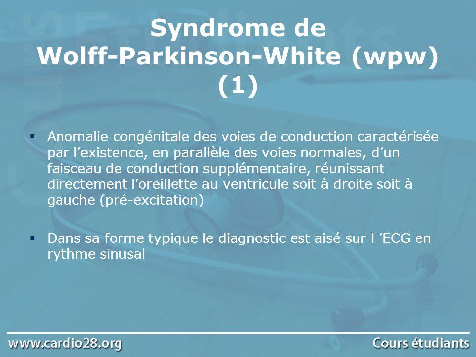 Syndrome de Wolff-Parkinson-White (wpw) (1) Anomalie congénitale des voies de conduction caractérisée par lexistence, en parallèle des voies normales,