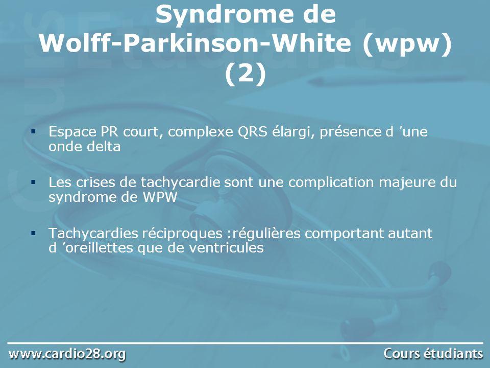 Espace PR court, complexe QRS élargi, présence d une onde delta Les crises de tachycardie sont une complication majeure du syndrome de WPW Tachycardie