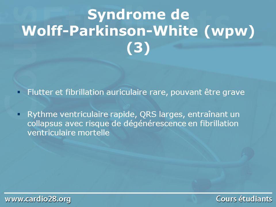 Flutter et fibrillation auriculaire rare, pouvant être grave Rythme ventriculaire rapide, QRS larges, entraînant un collapsus avec risque de dégénéres