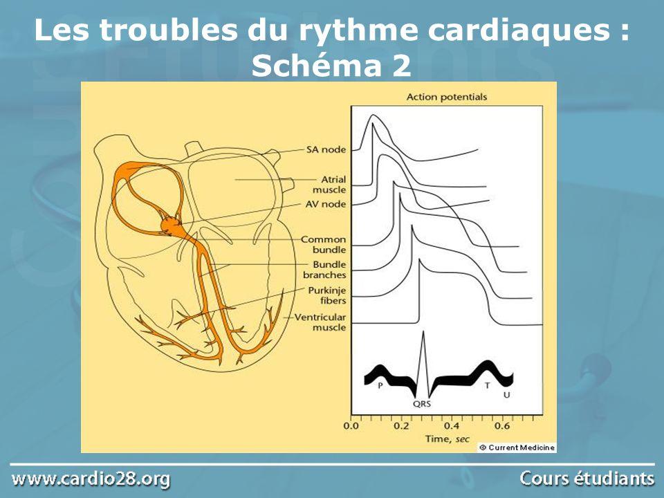 Flutter et fibrillation auriculaire rare, pouvant être grave Rythme ventriculaire rapide, QRS larges, entraînant un collapsus avec risque de dégénérescence en fibrillation ventriculaire mortelle Syndrome de Wolff-Parkinson-White (wpw) (3)