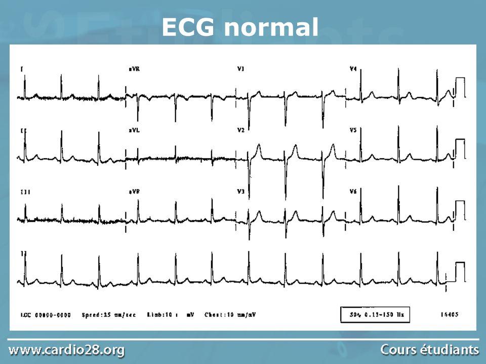 LElectrocardiogramme L ECG est l examen le plus simple et le seul nécessaire pour identifier un trouble du rythme ou de la conduction Le tracé doit être de bonne qualité en évitant les parasites et prolongé dans les dérivations où les QRS sont plus parlants et les ondes P mieux visibles (D2 et V1)