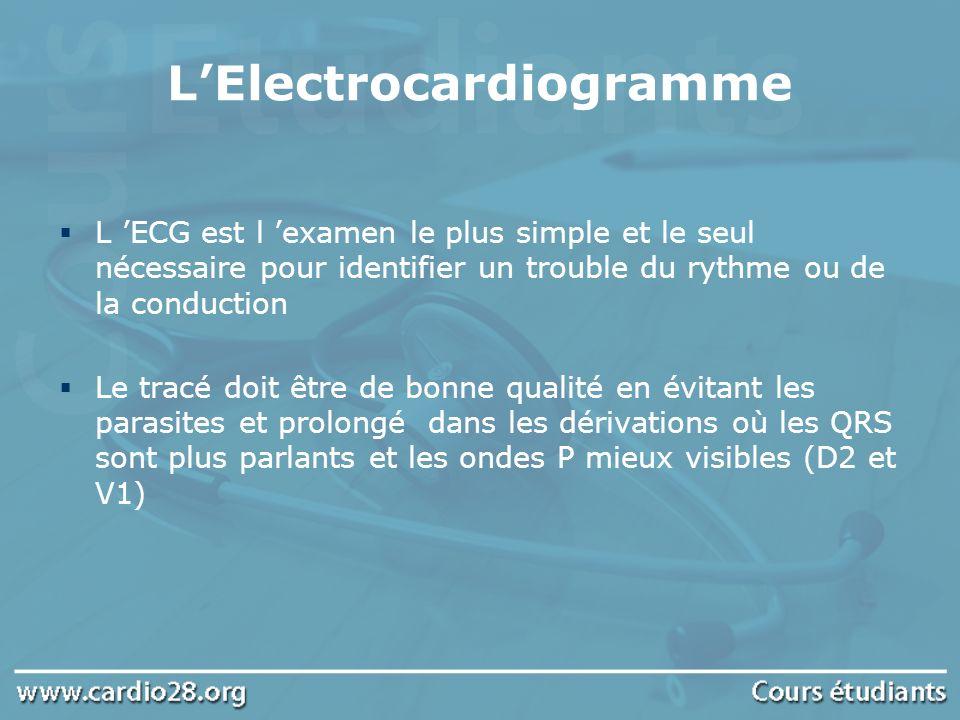 LElectrocardiogramme L ECG est l examen le plus simple et le seul nécessaire pour identifier un trouble du rythme ou de la conduction Le tracé doit êt
