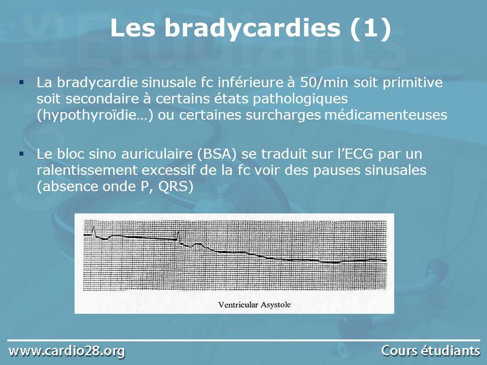 Les bradycardies (2) Étiologies des BSA : aigus par surcharge thérapeutique, coronaropathie (angor spastique, idm) chroniques (valvulopathies, amylose, hypothyroïdie) Traitement : BSA aigu souvent transitoire répond à l atropine BSA chronique : indication à un stimulateur cardiaque