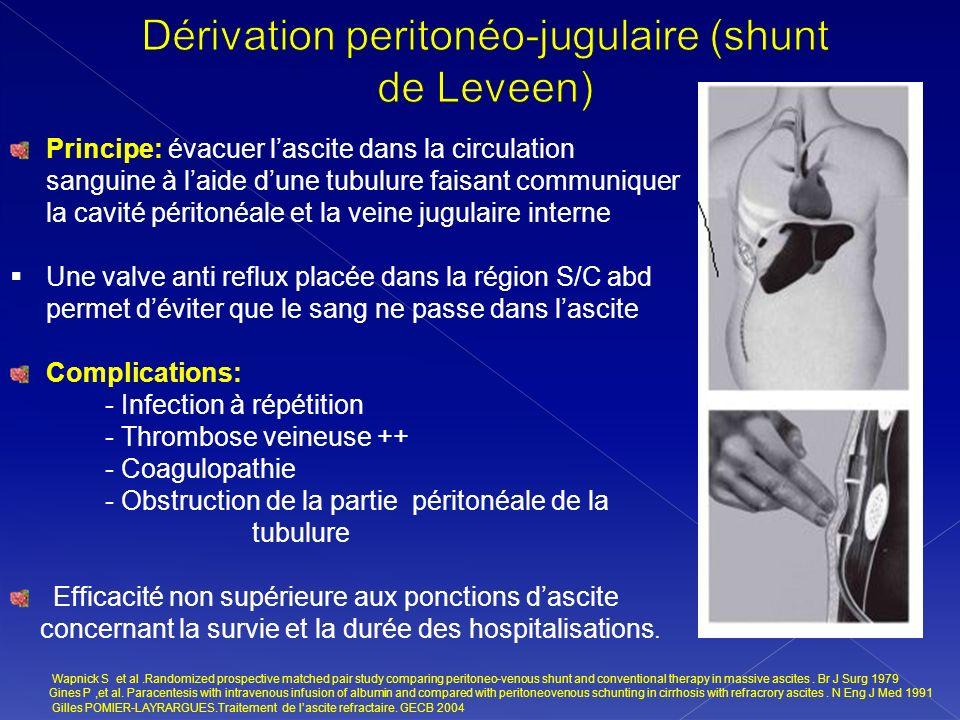 Principe: évacuer lascite dans la circulation sanguine à laide dune tubulure faisant communiquer la cavité péritonéale et la veine jugulaire interne U