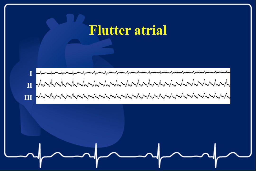 I II III Flutter atrial