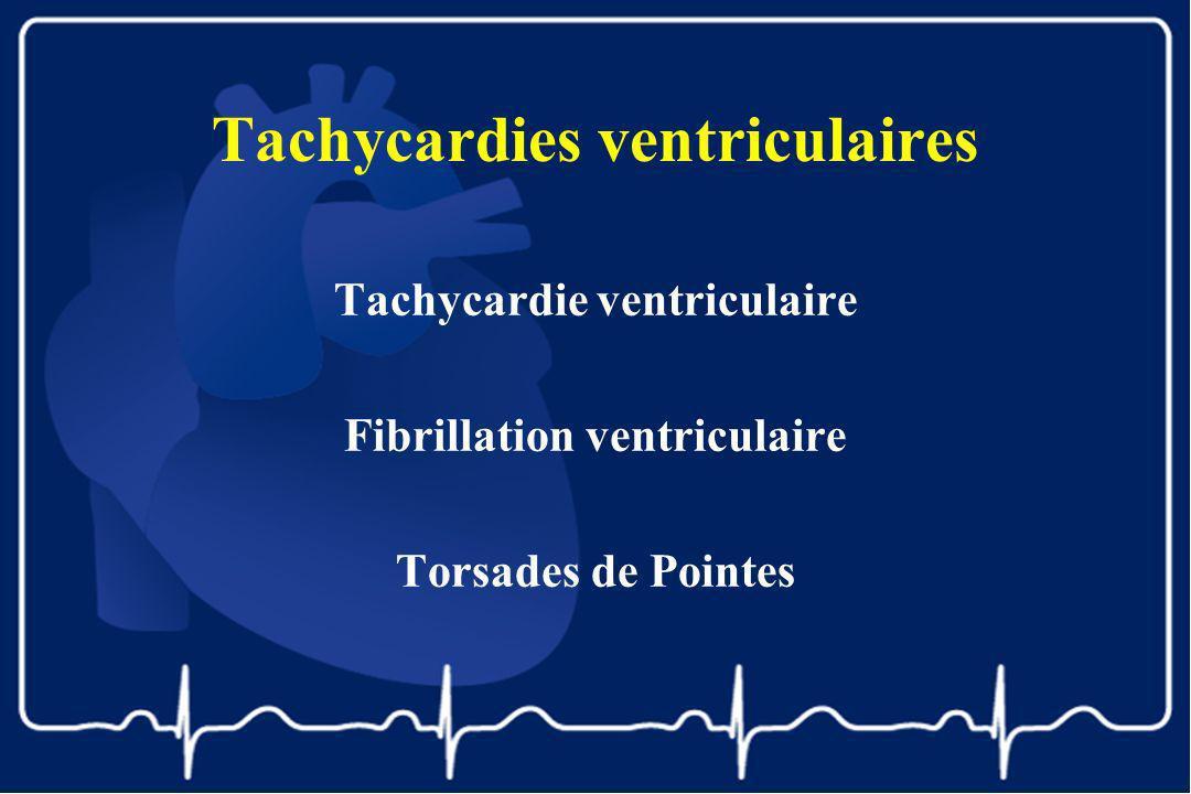Tachycardies ventriculaires Tachycardie ventriculaire Fibrillation ventriculaire Torsades de Pointes