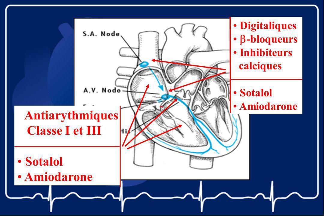 Digitaliques -bloqueurs Inhibiteurs calciques Sotalol Amiodarone Antiarythmiques Classe I et III Sotalol Amiodarone