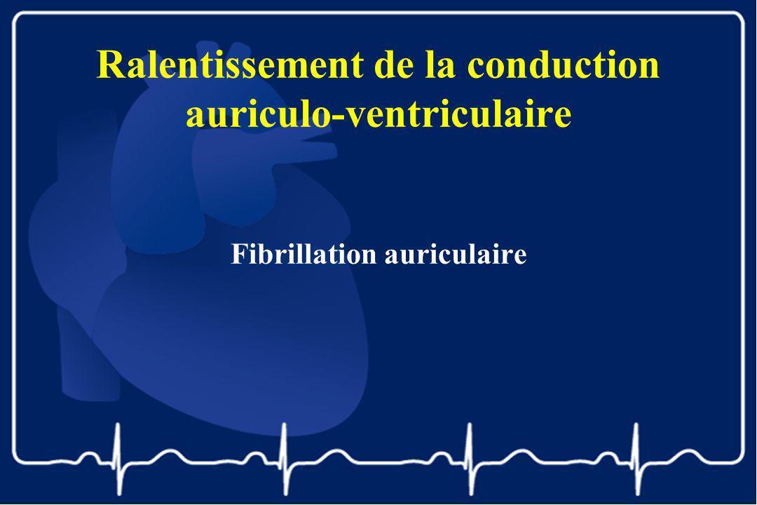 Ralentissement de la conduction auriculo-ventriculaire Fibrillation auriculaire