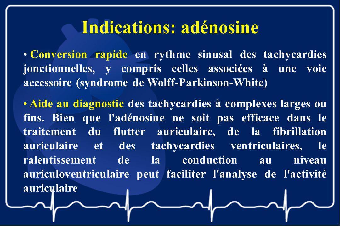 Indications: adénosine Conversion rapide en rythme sinusal des tachycardies jonctionnelles, y compris celles associées à une voie accessoire (syndrome