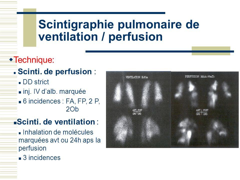 Scintigraphie pulmonaire de ventilation / perfusion Technique: Scinti. de perfusion : DD strict inj. IV dalb. marquée 6 incidences : FA, FP, 2 P, 2Ob