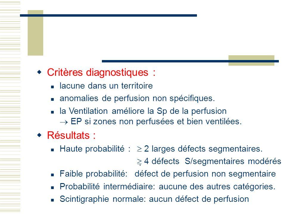 Critères diagnostiques : lacune dans un territoire anomalies de perfusion non spécifiques. la Ventilation améliore la Sp de la perfusion EP si zones n