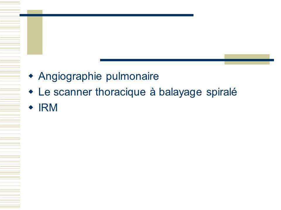 Angiographie pulmonaire Le scanner thoracique à balayage spiralé IRM