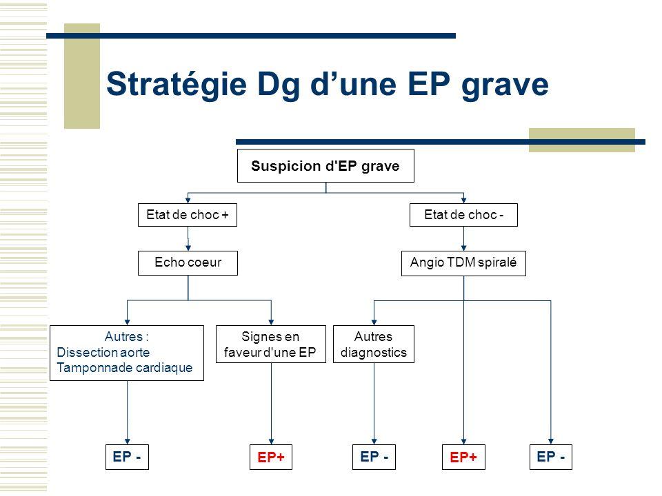 Stratégie Dg dune EP grave EP+ Etat de choc + Suspicion d'EP grave Echo coeur Autres : Dissection aorte Tamponnade cardiaque EP - Etat de choc - Angio