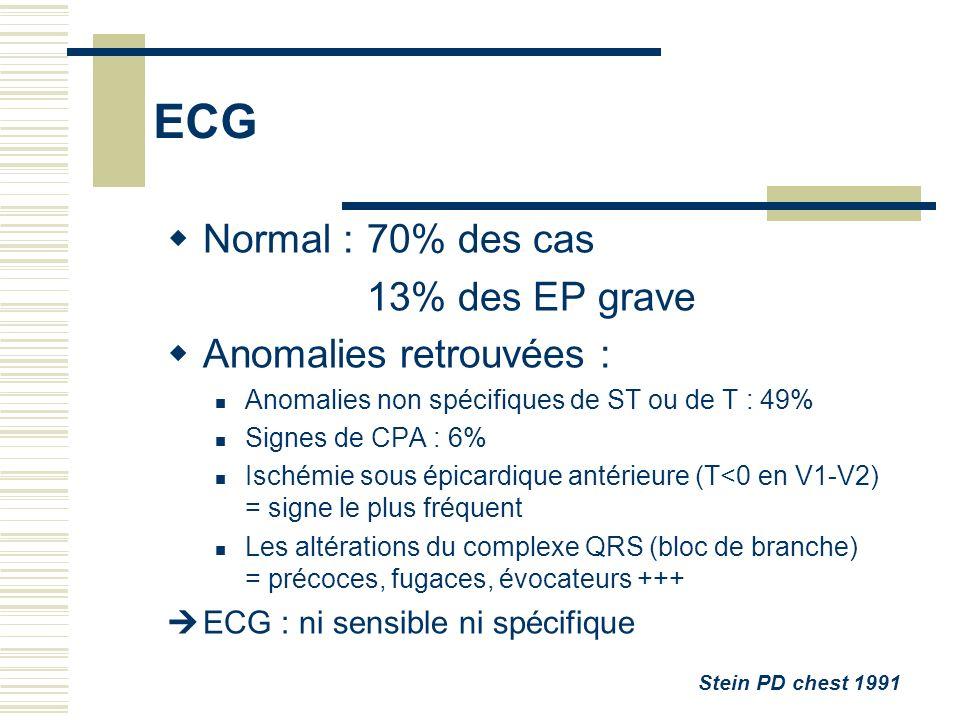 ECG Normal :70% des cas 13% des EP grave Anomalies retrouvées : Anomalies non spécifiques de ST ou de T : 49% Signes de CPA : 6% Ischémie sous épicard