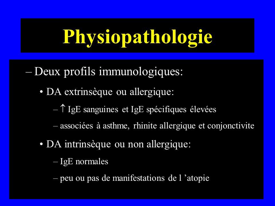 Physiopathologie –Deux profils immunologiques: DA extrinsèque ou allergique: – IgE sanguines et IgE spécifiques élevées –associées à asthme, rhinite a