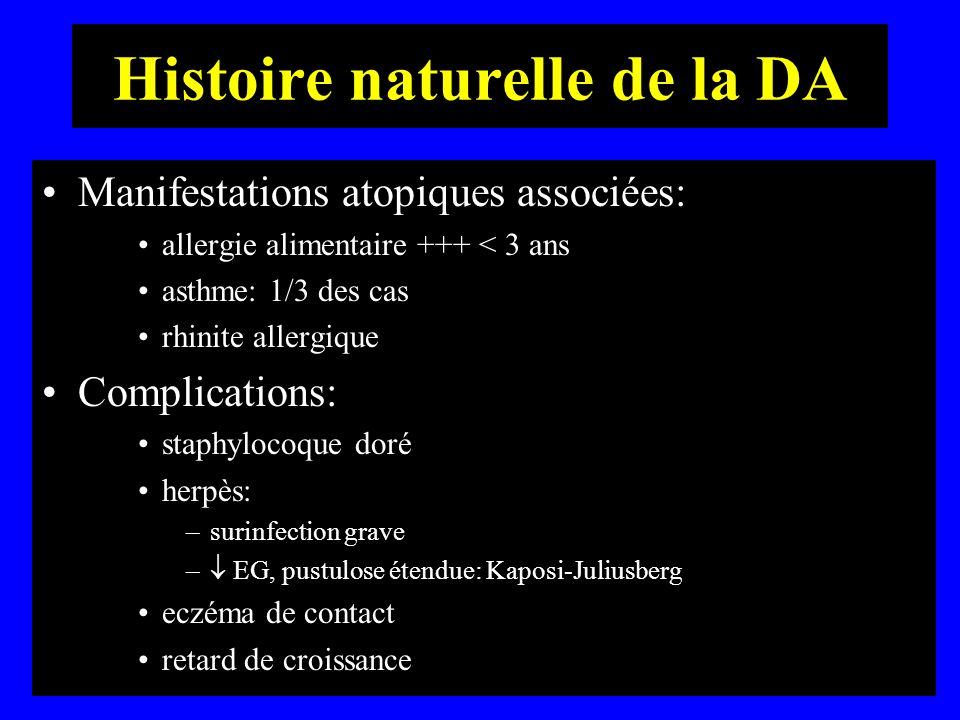 Histoire naturelle de la DA Manifestations atopiques associées: allergie alimentaire +++ < 3 ans asthme: 1/3 des cas rhinite allergique Complications: