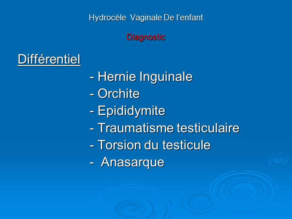 Hydrocèle Vaginale De lenfant Traitement Chirurgical : -Traitement de la PCPV -Traitement de la PCPV - Résection - retournement de la - Résection - retournement de la vaginale.