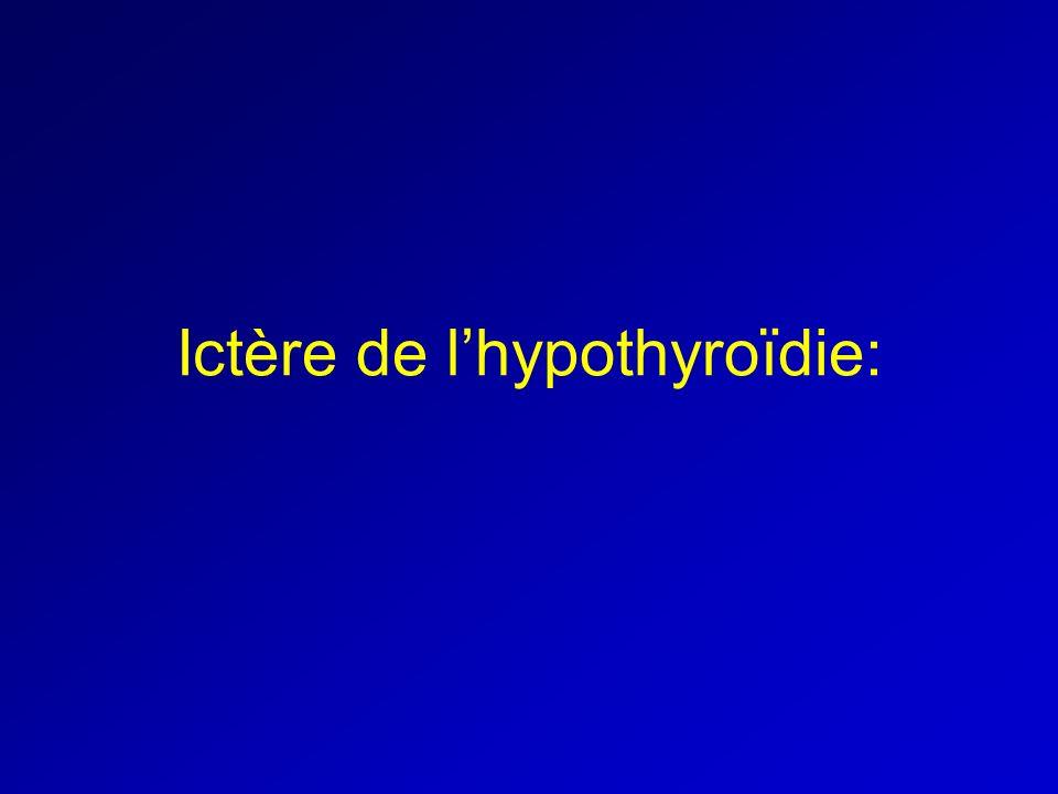 Ictère de lhypothyroïdie: