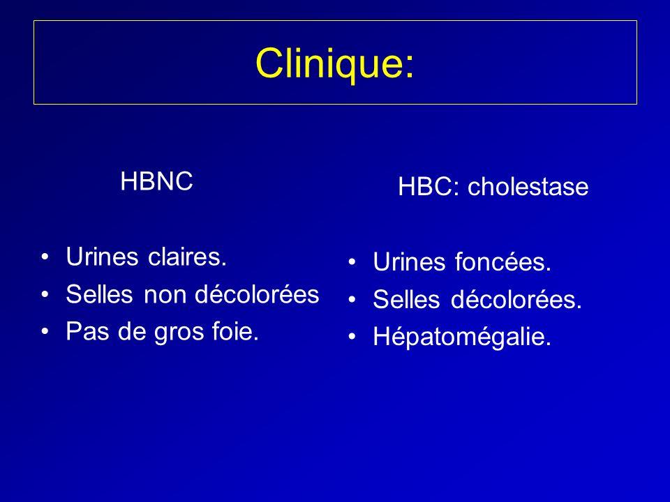 Clinique: HBNC Urines claires. Selles non décolorées Pas de gros foie. HBC: cholestase Urines foncées. Selles décolorées. Hépatomégalie.