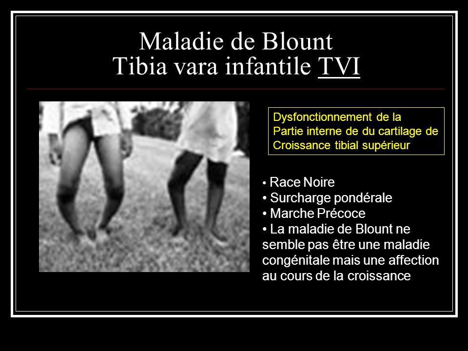 Maladie de Blount Tibia vara infantile TVI Race Noire Surcharge pondérale Marche Précoce La maladie de Blount ne semble pas être une maladie congénita