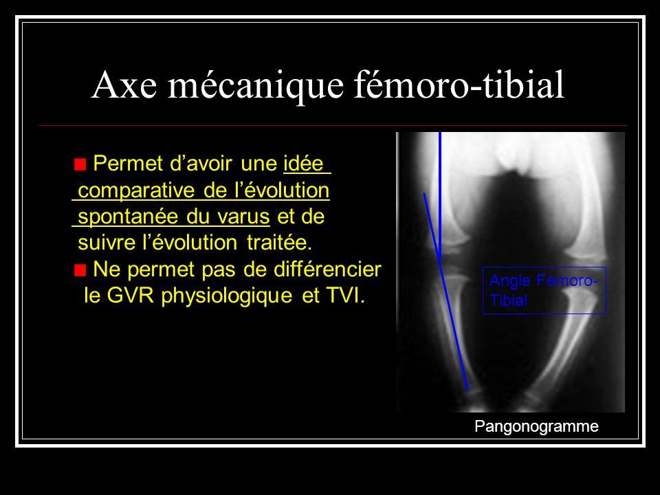 Axe mécanique fémoro-tibial Angle Fémoro- Tibial Pangonogramme Permet davoir une idée comparative de lévolution spontanée du varus et de suivre lévolu
