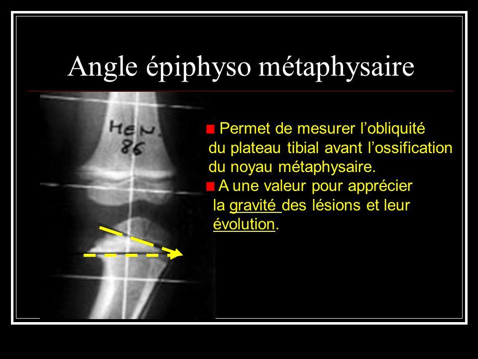 Angle épiphyso métaphysaire Permet de mesurer lobliquité du plateau tibial avant lossification du noyau métaphysaire. A une valeur pour apprécier la g