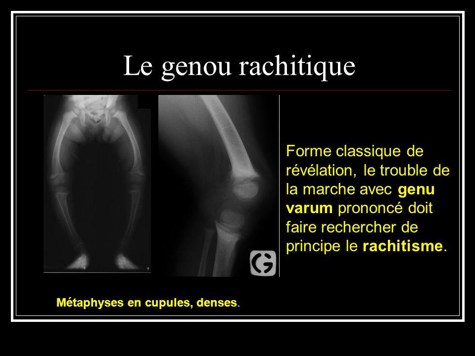 Le genou rachitique Forme classique de révélation, le trouble de la marche avec genu varum prononcé doit faire rechercher de principe le rachitisme. M