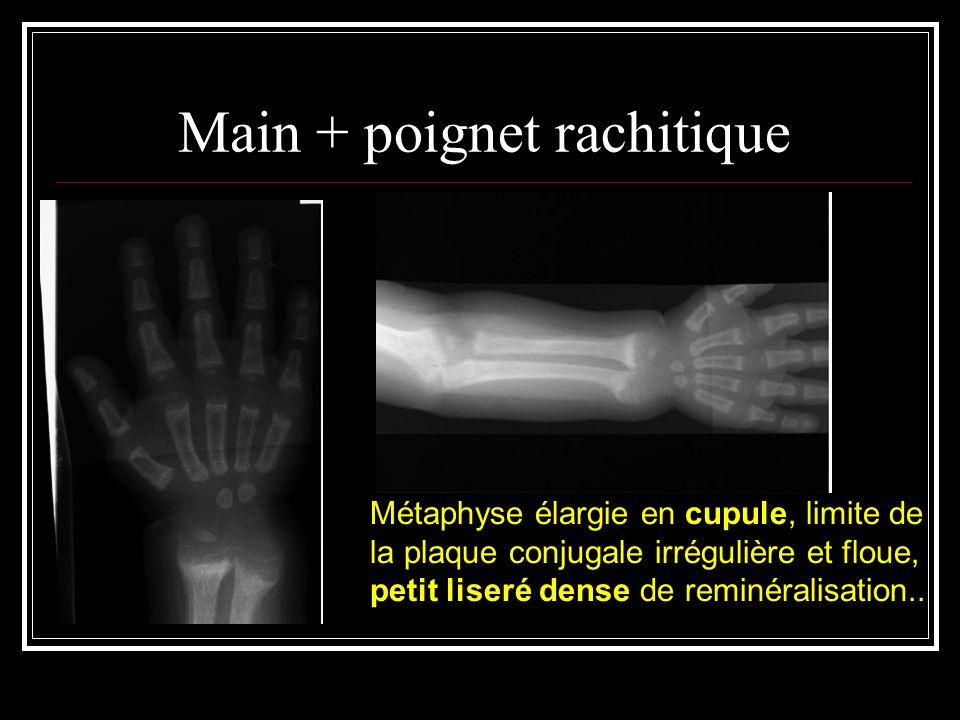 Main + poignet rachitique Métaphyse élargie en cupule, limite de la plaque conjugale irrégulière et floue, petit liseré dense de reminéralisation..