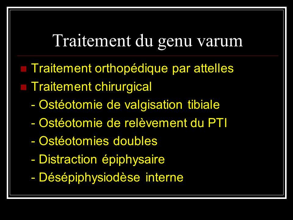 Traitement du genu varum Traitement orthopédique par attelles Traitement chirurgical - Ostéotomie de valgisation tibiale - Ostéotomie de relèvement du