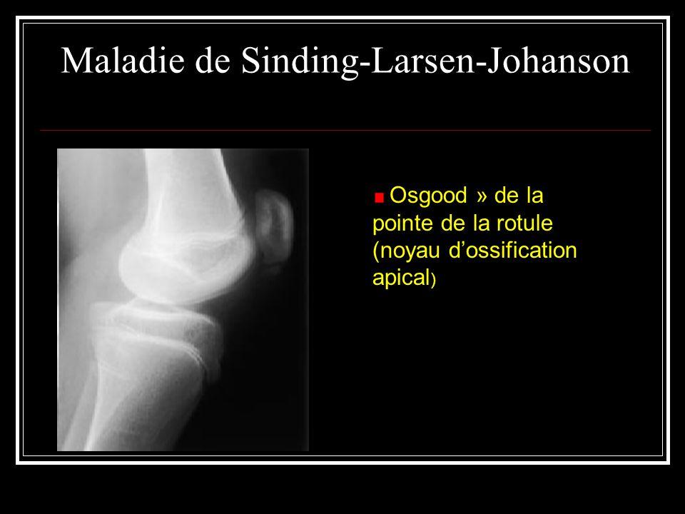 Maladie de Sinding-Larsen-Johanson Osgood » de la pointe de la rotule (noyau dossification apical )