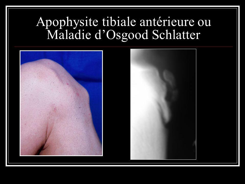 Apophysite tibiale antérieure ou Maladie dOsgood Schlatter