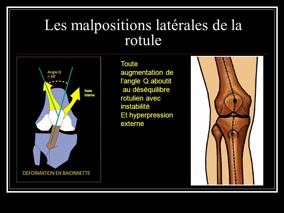 Les malpositions latérales de la rotule Toute augmentation de langle Q aboutit au déséquilibre rotulien avec instabilité Et hyperpression externe