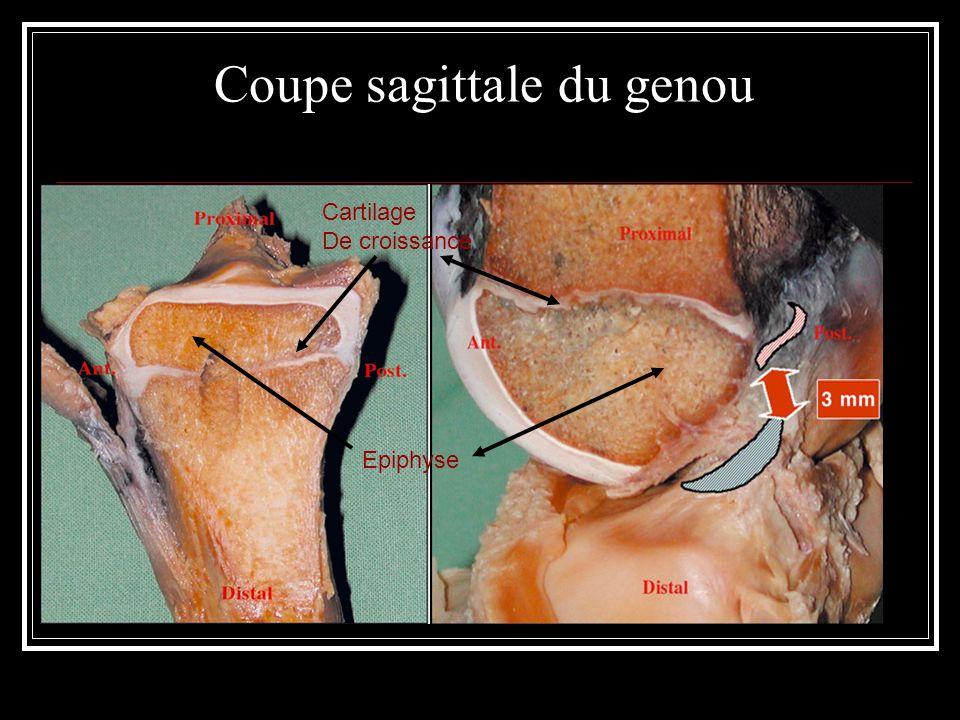 Coupe sagittale du genou Cartilage De croissance Epiphyse