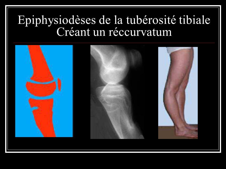 Epiphysiodèses de la tubérosité tibiale Créant un réccurvatum