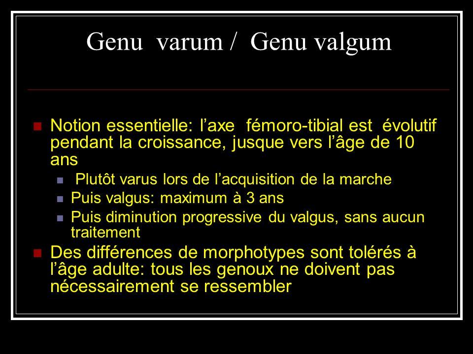 Genu varum / Genu valgum Notion essentielle: laxe fémoro-tibial est évolutif pendant la croissance, jusque vers lâge de 10 ans Plutôt varus lors de la