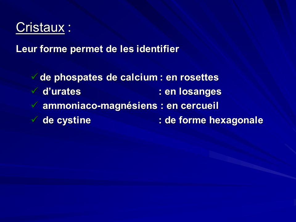 Cristaux : Leur forme permet de les identifier de phospates de calcium : en rosettes de phospates de calcium : en rosettes durates : en losanges durat
