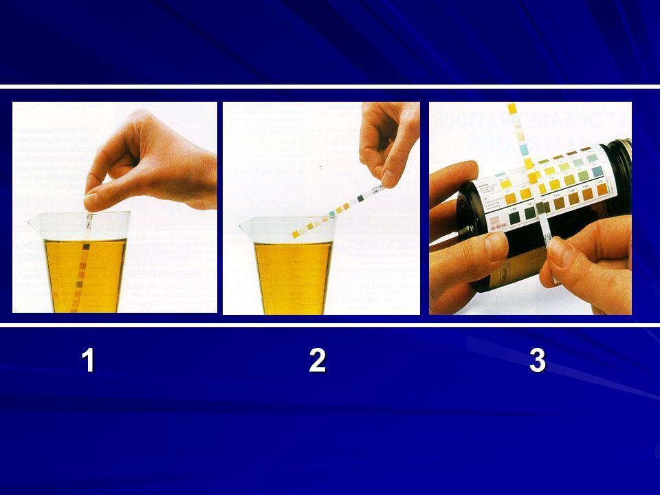 Objectiftempscontraintesvaleur pHimmédiat 5-8.5 5-8.5 protéinesimmédiat 50 mg/l 50 mg/l Taux + Sang 30 sec 30 sec 5GR/mm3 5GR/mm3 Sens = 85% Spé = 89% Leucocytes* 2 min 2 min10-15GB/mm3 Sen = 80% Spé = 75% Nitrites* 30 sec 30 secEntérobactéries Sens = 45% Spé = 85% Densité 60 sec 60 sec 1000 à 1030 Faux +:protidurie Faux - : pH >6.5 * Conditions de prélèvement idem que ECBU, Leucocytes + Nitrites = spécificité 100%