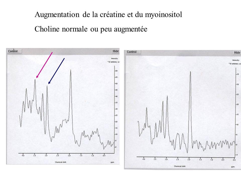Augmentation de la créatine et du myoinositol Choline normale ou peu augmentée