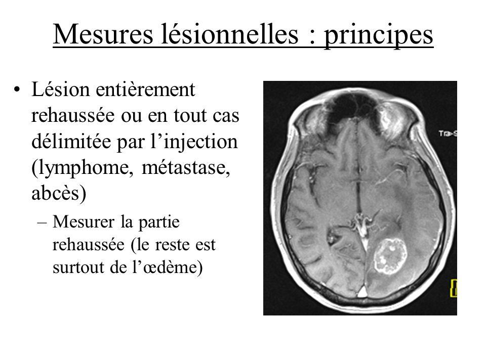 Mesures lésionnelles : principes Lésion entièrement rehaussée ou en tout cas délimitée par linjection (lymphome, métastase, abcès) –Mesurer la partie