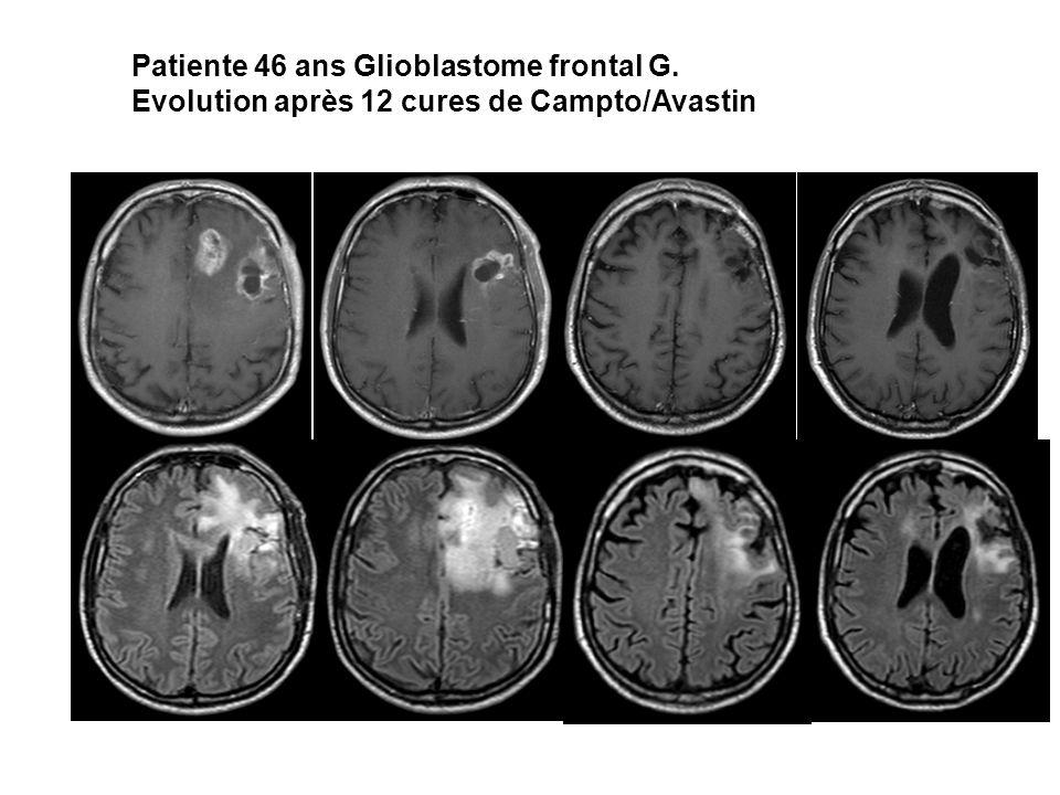 Patiente 46 ans Glioblastome frontal G. Evolution après 12 cures de Campto/Avastin