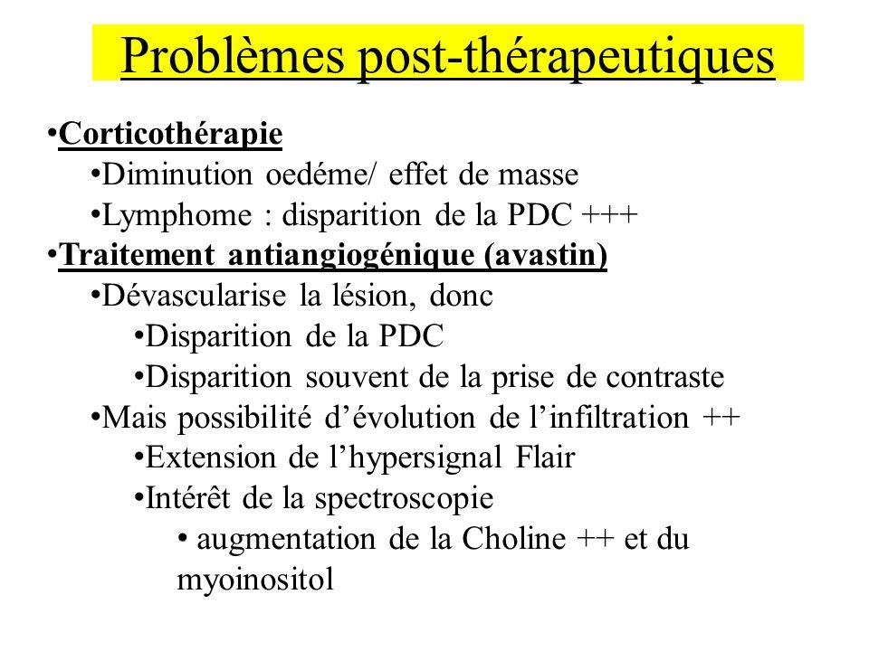 Corticothérapie Diminution oedéme/ effet de masse Lymphome : disparition de la PDC +++ Traitement antiangiogénique (avastin) Dévascularise la lésion,