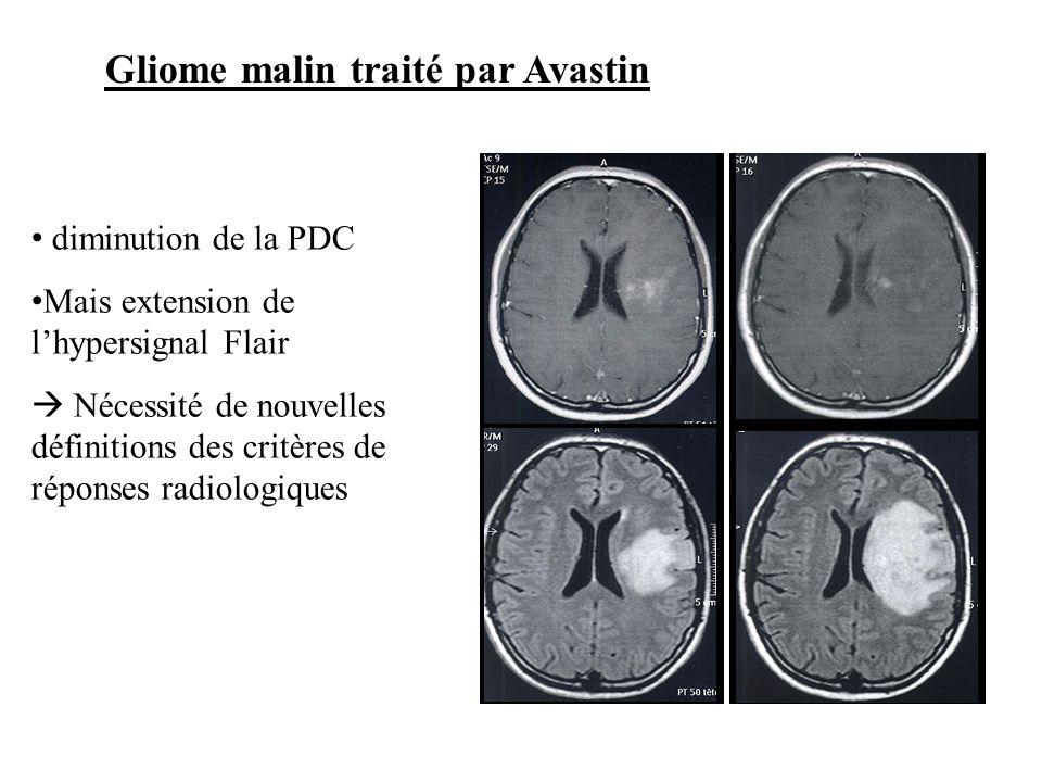 diminution de la PDC Mais extension de lhypersignal Flair Nécessité de nouvelles définitions des critères de réponses radiologiques Gliome malin trait