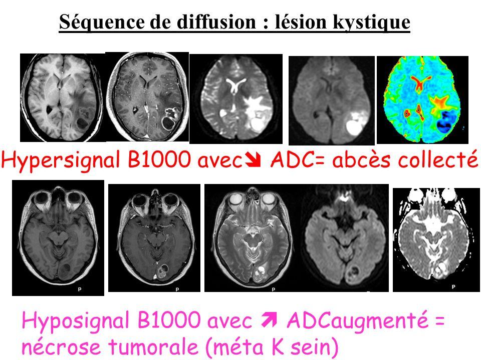 Séquence de diffusion : lésion kystique Hypersignal B1000 avec ADC= abcès collecté Hyposignal B1000 avec ADCaugmenté = nécrose tumorale (méta K sein)