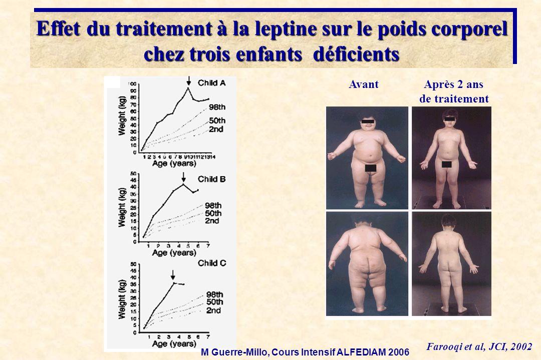 Farooqi et al, JCI, 2002 AvantAprès 2 ans de traitement Effet du traitement à la leptine sur le poids corporel chez trois enfants déficients Effet du