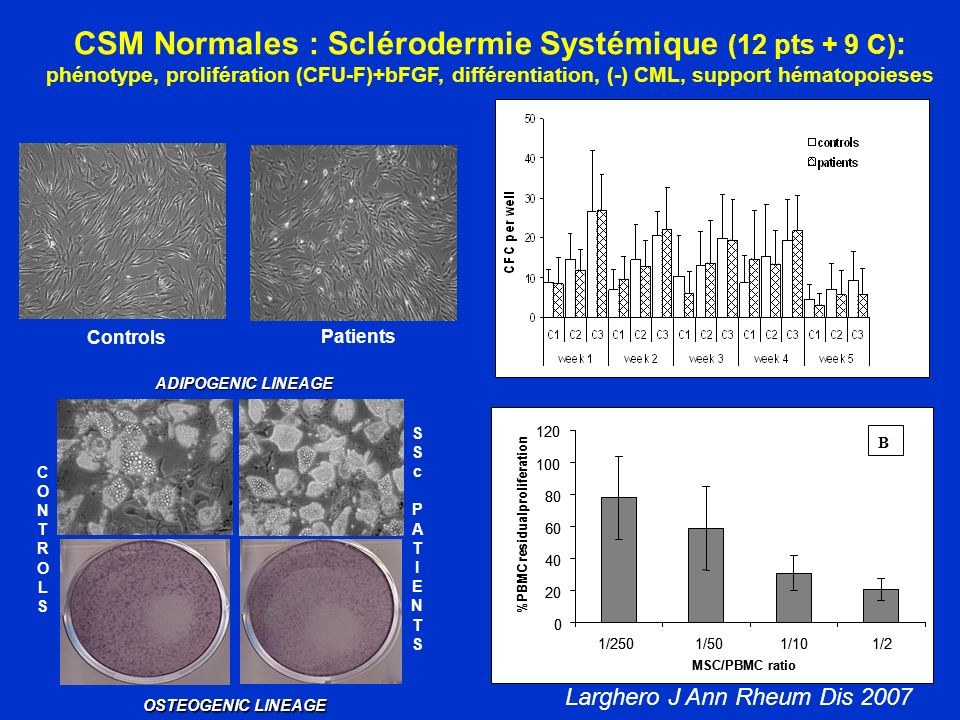 SSc MSCs ADIPOGENIC LINEAGE OSTEOGENIC LINEAGE SScPATIENTSSScPATIENTS CONTROLSCONTROLS CSM Normales : Sclérodermie Systémique (12 pts + 9 C) : phénoty