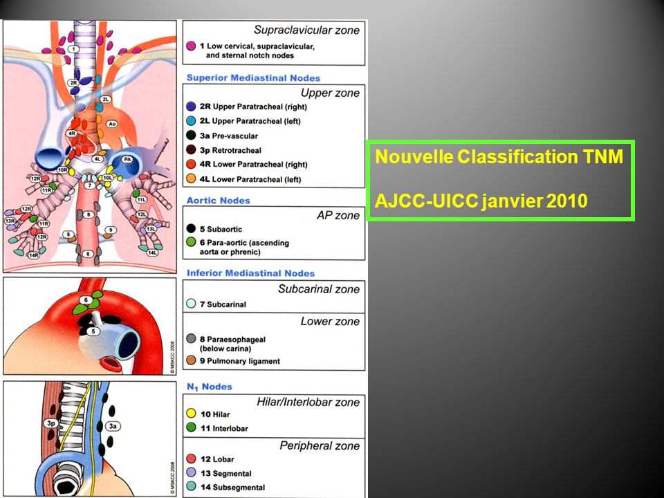 7 ème édition TNM UICC-AJCC (01.01.2010) Nx = ganglions non évaluables N0 = pas denvahissement des ganglions régionaux N1 = 1 à 2 ganglions envahis N2 = 3 à 6 ganglions envahis N3 = > 6 ganglions envahis M0 = pas de métastase à distance M1 = présence de métastase à distance T N M T0 = pas de tumeur primitive Tis = carcinome in situ, dysplasie de haut grade T1 = tumeur envahissant la lamina propria, la muscularis mucosae ou la sous- muqueuse T1a = tumeur envahissant la lamina propria ou la muscularis mucosae T1b = tumeur envahissant la sous-muqueuse T2 = tumeur envahissant la musculeuse propre T3 = tumeur envahissant ladventice T4 = tumeur envahissant les structures adjacentes T4a = tumeur résecable envahissant plèvre, péricarde, diaphragme, péritoine adjacent T4b = tumeur non résecable envahissant dautres structures (aorte, corps vertébral, trachée …)