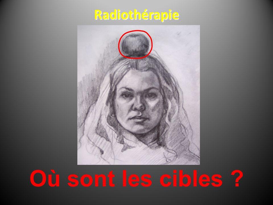 Où sont les cibles ? Radiothérapie