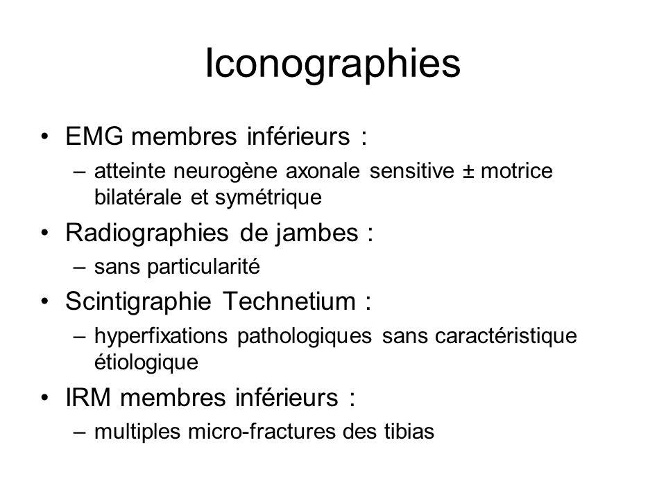 Iconographies EMG membres inférieurs : –atteinte neurogène axonale sensitive ± motrice bilatérale et symétrique Radiographies de jambes : –sans partic