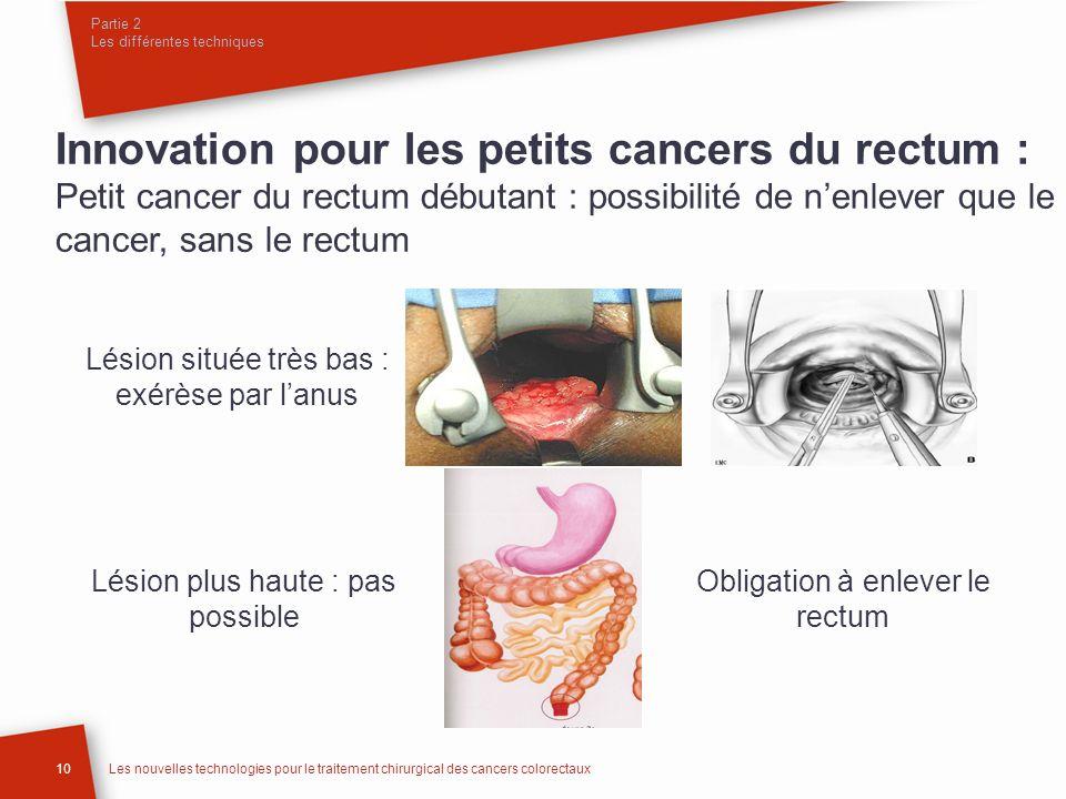 Partie 2 Les différentes techniques 10Les nouvelles technologies pour le traitement chirurgical des cancers colorectaux Innovation pour les petits can